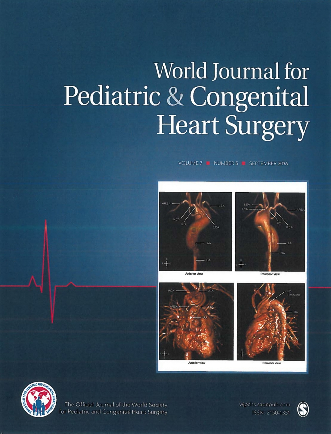 Single-Stage Total Arch Replacement Including Resection of Kommerell Diverticulum in a Patient With Loeys-Dietz Syndrome - World J Cover 1200px.jpg